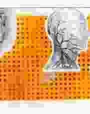 Serigrafías 2001, Colección Particular.